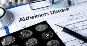 Alzheimers Disease concept, Brain degenerative diseases Parkinson